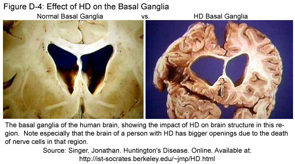 Fig D-4: Effect of HD on the Basal Ganglia
