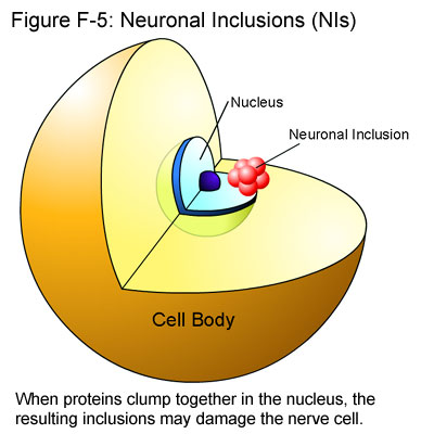 Fig F-5: Neural Inclusions (NIs)