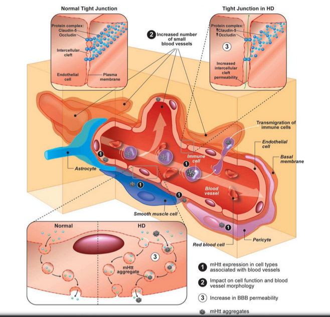 Cerebrovascular and blood brain barrier impairments in huntingtons figure two used with original authors permission 5 ccuart Gallery